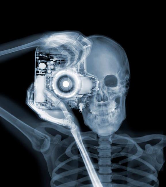 Röntgen után